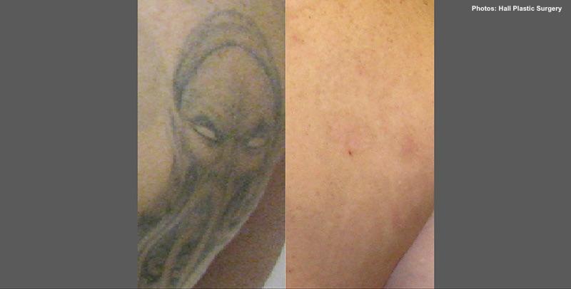 Tattoo-Entfernung Vorher-Nachher